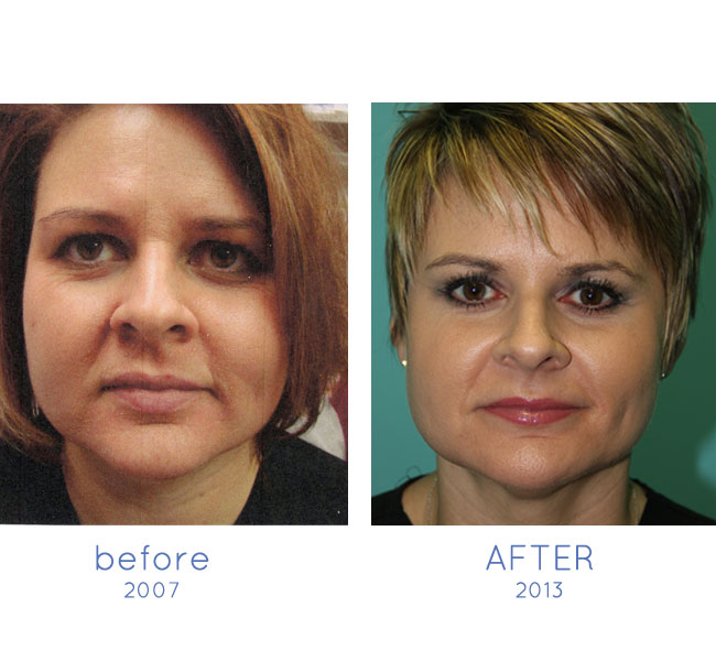 neocutis lumiere before after